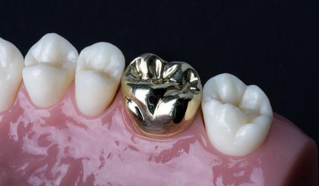 металне зубне крунице