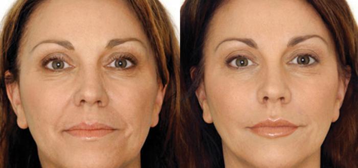 microcorrenti per le revisioni del viso