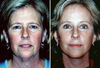 recensioni viso microcorrente