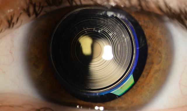 multifokalne leće