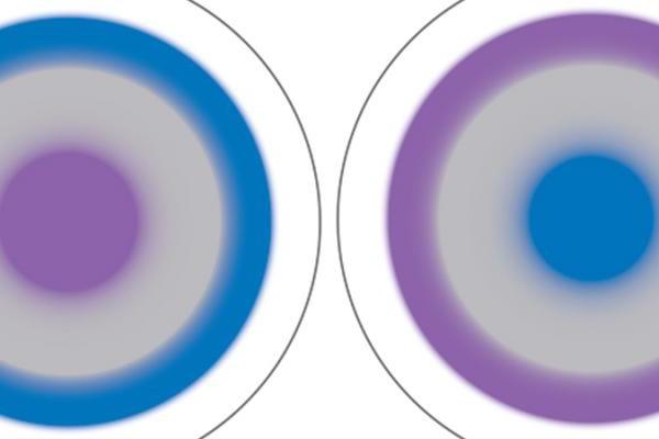 izbor multifokalnih leća