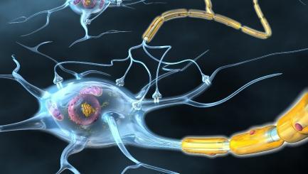 zdravljenje multiple skleroze z matičnimi celicami