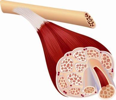 syndrom vertebrogenního svalového tonu
