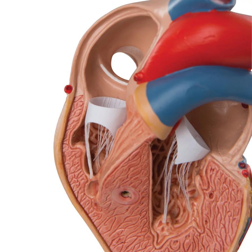 ipertrofia cardiaca