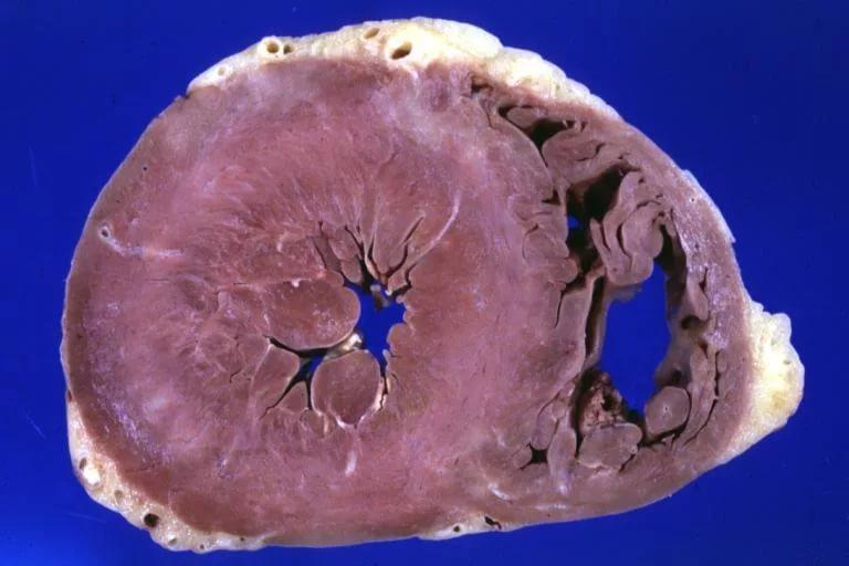 Aumento del ventricolo sinistro