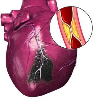 рехабилитация на миокарден инфаркт