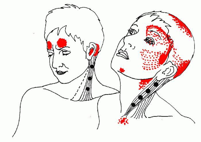 лечение на миофасциален синдром