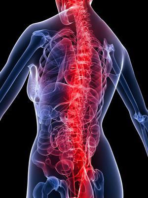 миофасциален синдром на шийката на матката