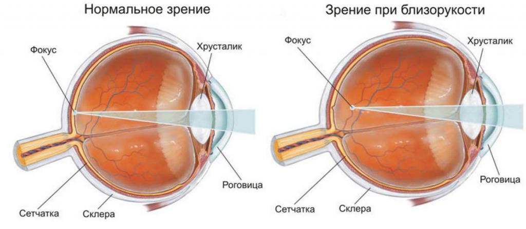 Visione con normale e miope