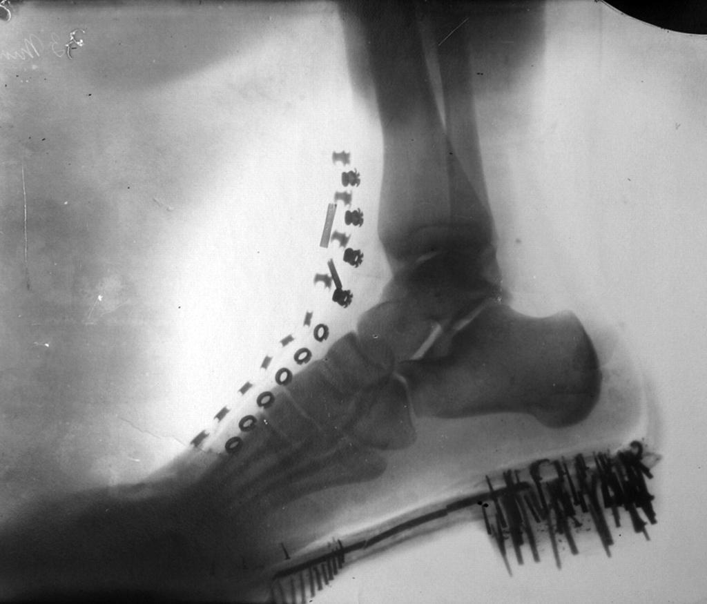 Radiografia del piede di Tesla