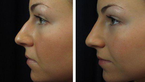 нехируршка ринопластика носа