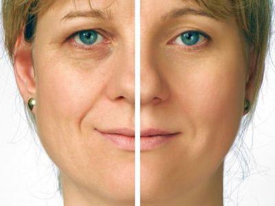 sollevamento del viso e del collo non invasivo