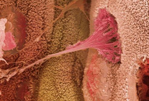 sintomi della colite ulcerosa