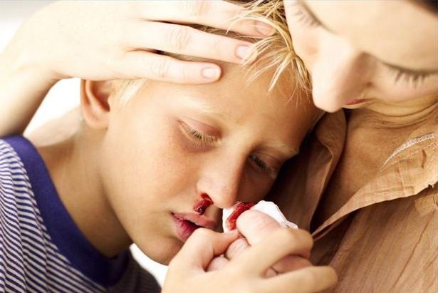 tinejdžersko krvarenje iz nosa