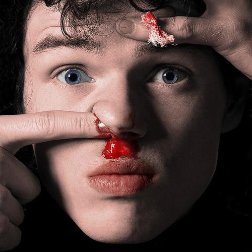 krvarenje iz nosa djeteta