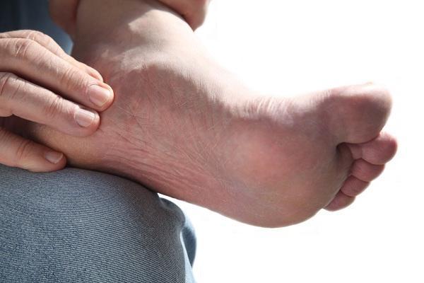 simptomi endarteritisa obliterans