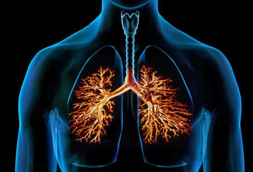 Bronchite cronica ostruttiva dei polmoni