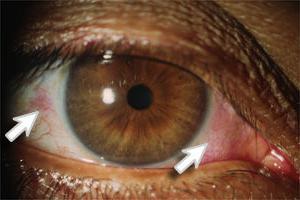 Zespół suchego oka Systane Ultra