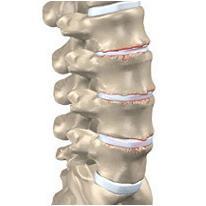 osteocondrosi lombare
