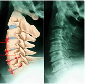 osteocondrosi dei dischi della colonna lombare