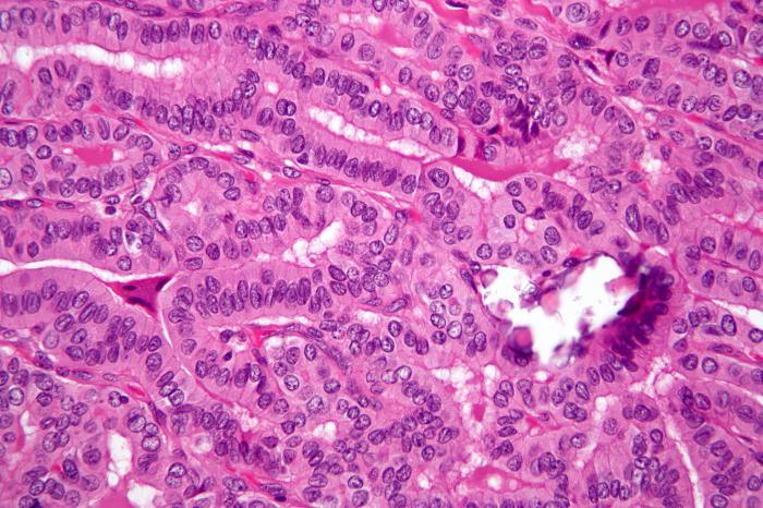 cancro alla tiroide papillare il tipo più comune