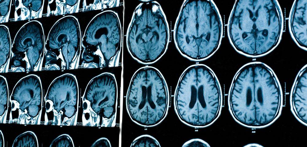 Pacijentov mozak