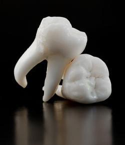 коријен зуба