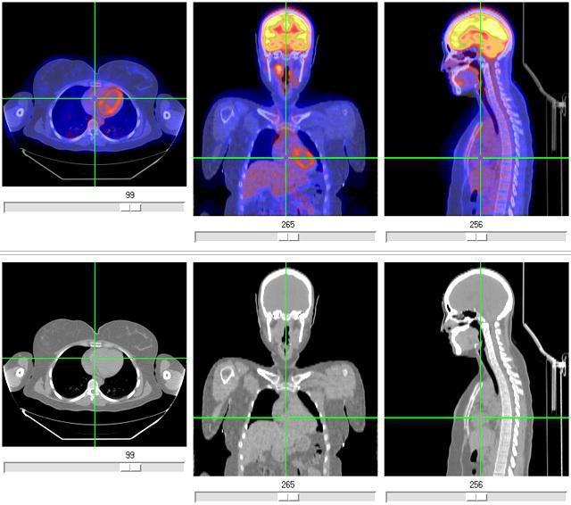 Studio PET-CT: cos'è?