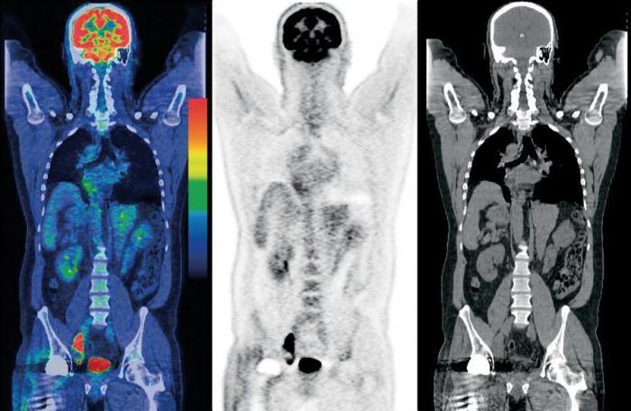 PET-CT a corpo intero