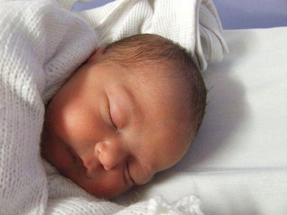 Sindrom Pierre Robin pri novorojenčkih