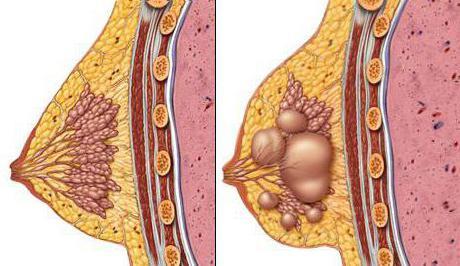 analozi mastodinona