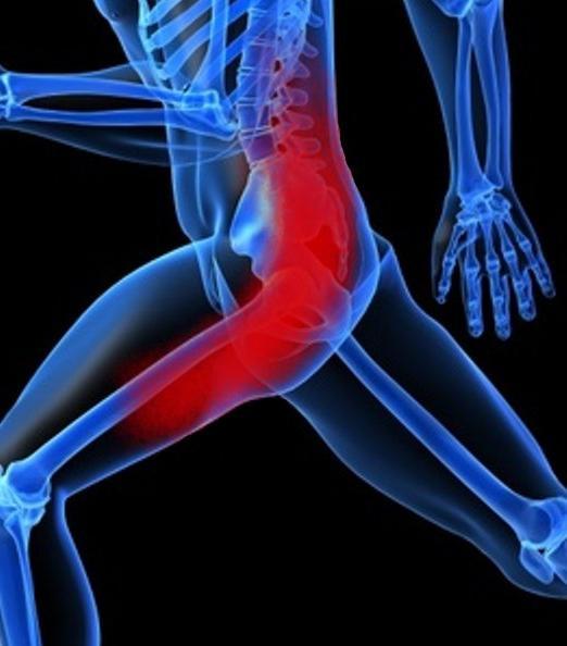 povreda išijatičnog živca