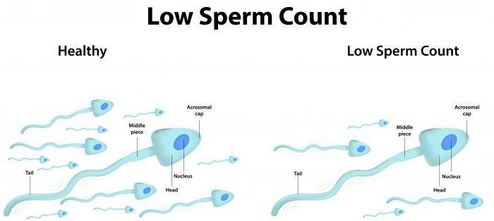 jak se připravit na analýzu spermií