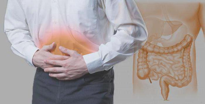 Simptomi i liječenje proktitisa