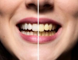 Екстензије зуба