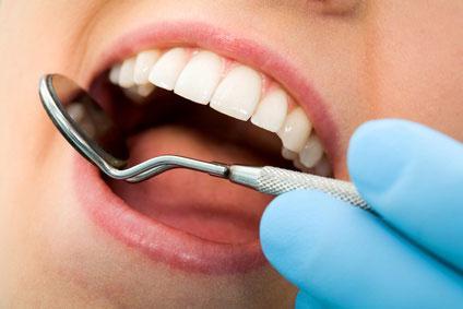 recensioni di pulizia dei denti professionali