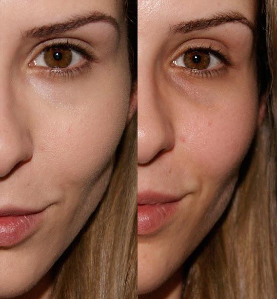 correttore facciale