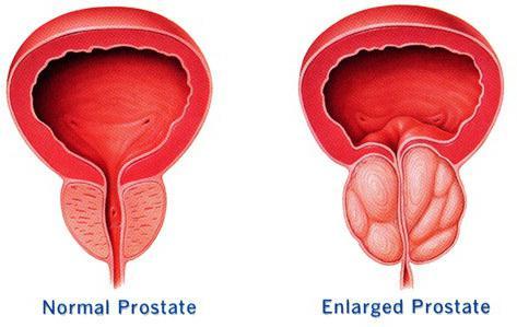 prostate u muškaraca