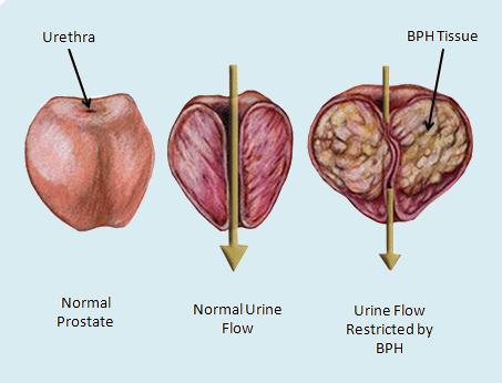znakovi adenoma prostate u muškaraca
