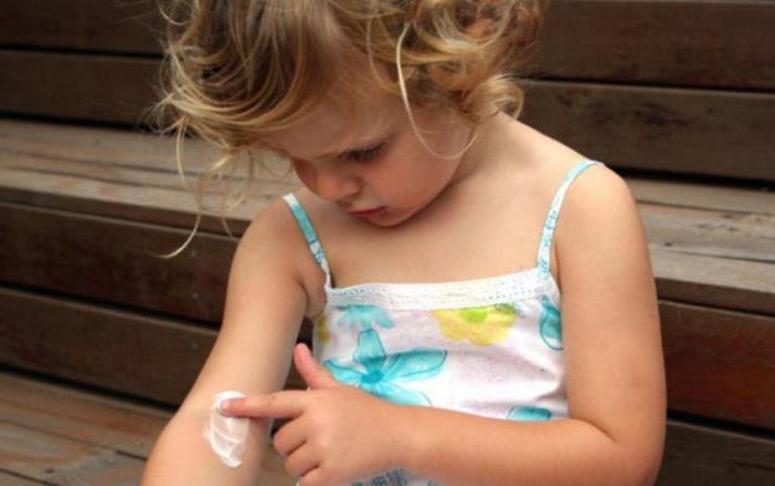 trattamento della psoriasi nei bambini