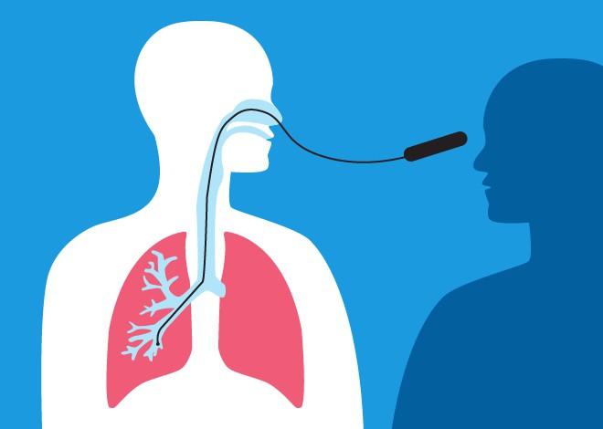 pulmolog je liječnik koji liječi