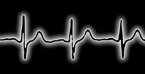 ljudski puls