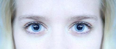 pupille permanentemente dilatate