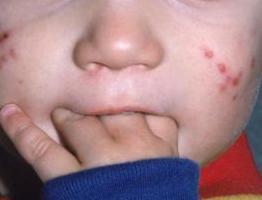 lica acne folk lijekova