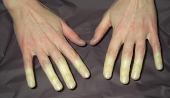 Liječenje Raynaudovog sindroma