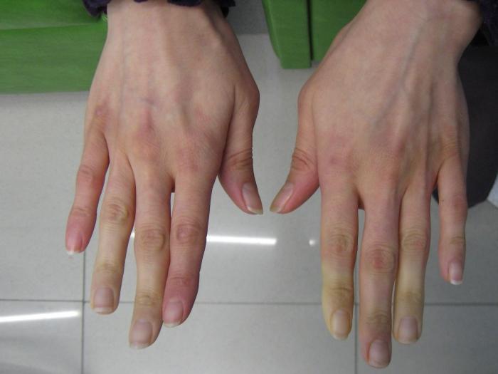 Simptomi Raynaudovog sindroma