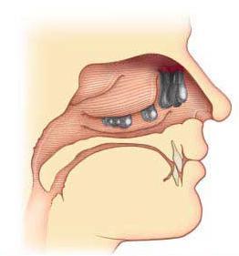 rimozione di polipi del naso