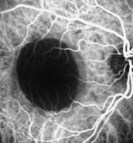 angiopatia retinica