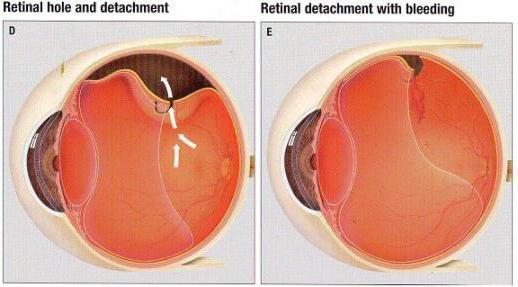 снимка на отлепване на ретината