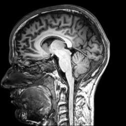 ретроградни симптоми на амнезия